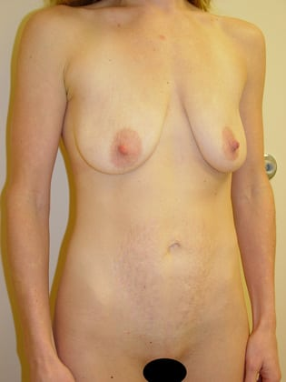 Tummy Tuck 15 Patient Before
