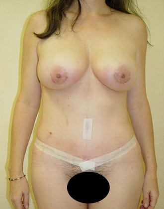 Tummy Tuck 02 Patient After