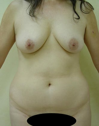 Tummy Tuck 02 Patient Before