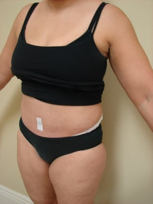 Tummy Tuck 20 Patient After