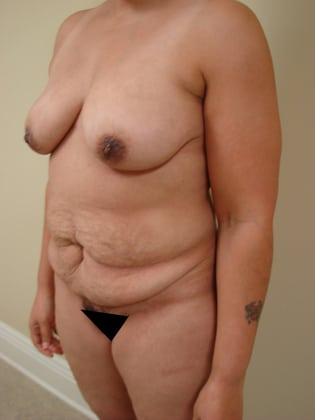 Tummy Tuck 20 Patient Before