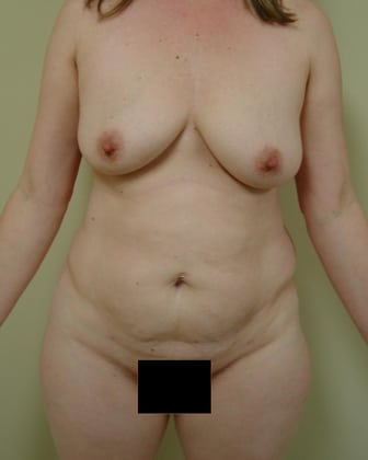Tummy Tuck 22 Patient Before