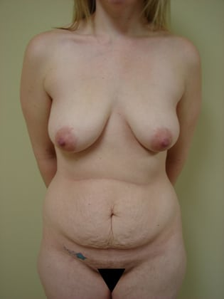 Tummy Tuck 23 Patient Before