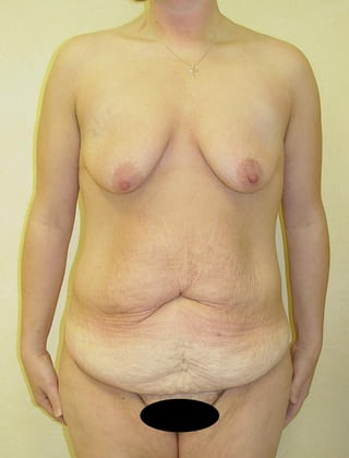 Tummy Tuck 04 Patient Before