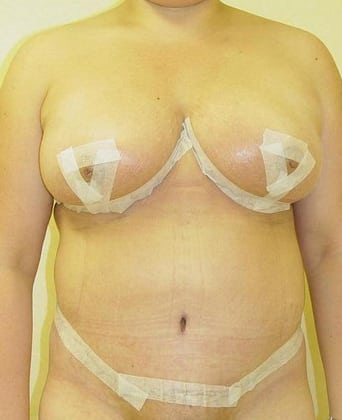 Tummy Tuck 05 Patient After