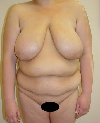 Tummy Tuck 05 Patient Before