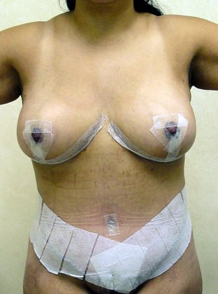 Tummy Tuck 07 Patient After