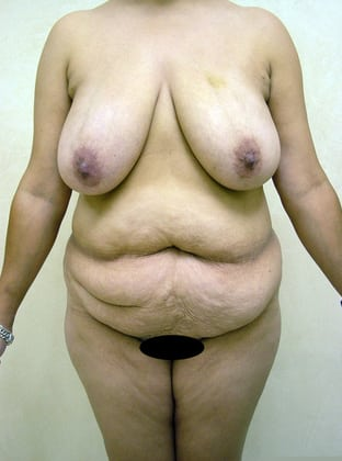Tummy Tuck 07 Patient Before