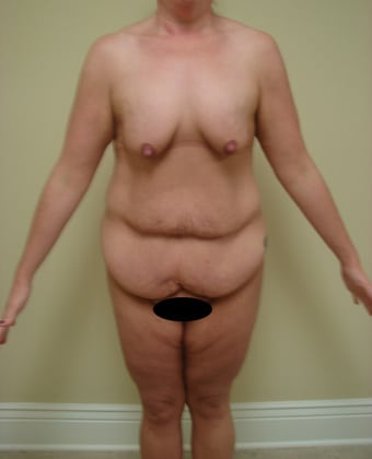Tummy Tuck 08 Patient Before