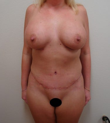 Tummy Tuck 09 Patient After