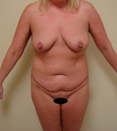 Tummy Tuck 09 Patient Before