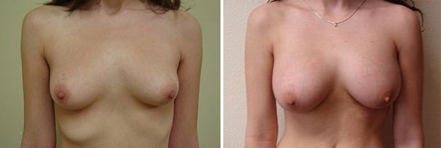 Breast Augmentation Patient Results