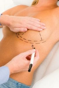 Woman with surgeon drawing lines on breasts