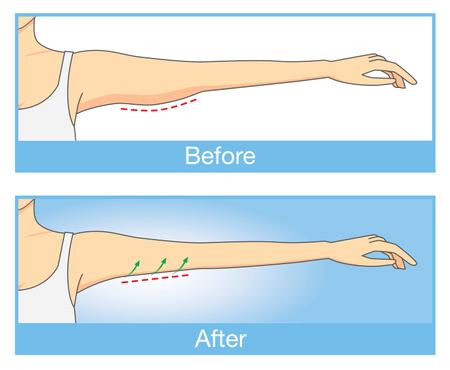 Armlift procedure diagram