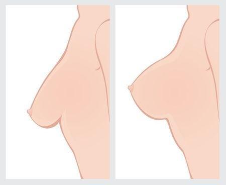 breast Lift procedure diagram
