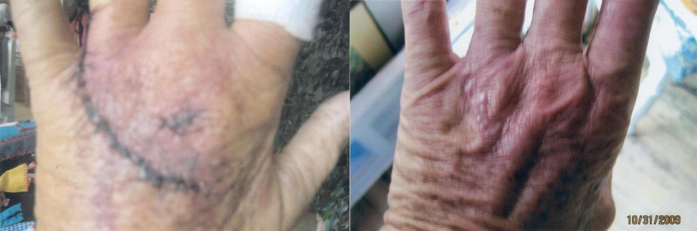 image of patient hand before and after