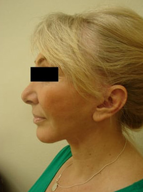 Facelift in San Francisco Patient After 4