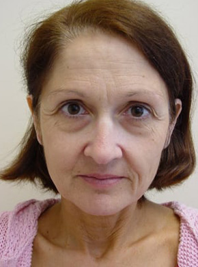 Facelift in San Francisco Patient Before 1