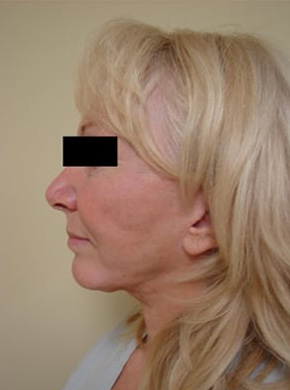 Facelift in San Francisco Patient Before 3