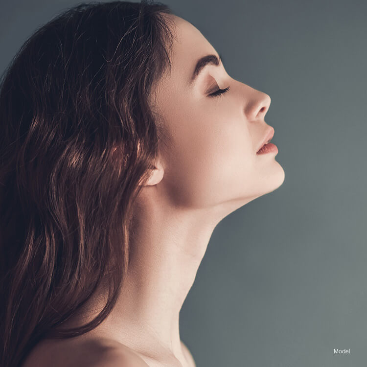 Model's face after Kybella treatment