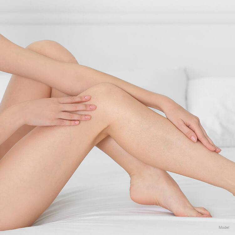 Image of a woman's legs after Sclerotherapy