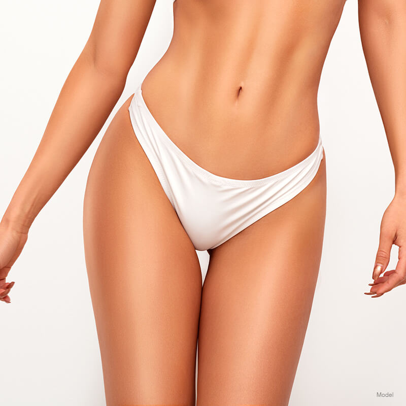 Woman's body after a ThermiVa® treatment