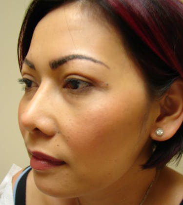Ethnic Rhinoplasty in San Francisco Patient After 2